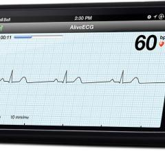 AliveCor AliveECG App Heart Monitor ECG Wireless Remote Access Mobile Device