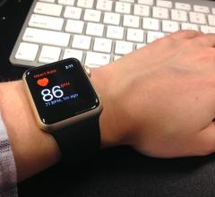 ECG on Smartwatch Accurately Detects AFib