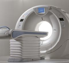 Toshiba, Aquilion ONE, enhancements, FDA, patient safety