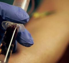 Abbott, troponin, women, myocardial infarction, blood testing, diagnosis
