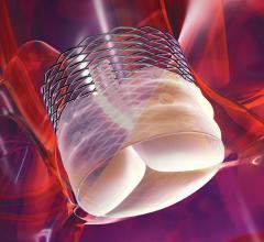 heart valve repair hybrid or TAVI boston scientific lotus aortic repair system