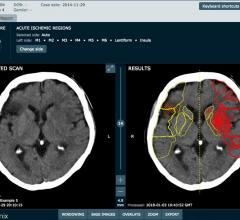 Brainomix Secures $9.8m Investment to Tackle Strokes With AI