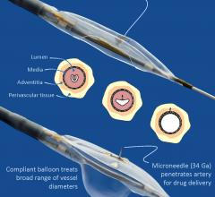 Interrupting Inflammatory Signals Decreases Repeat Artery Blockage