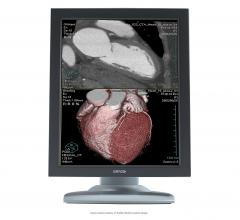 CT systems, CT angiography, SCCT