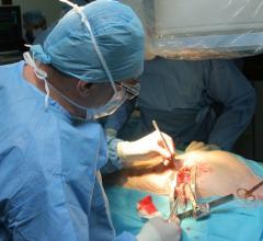 CABG, bypass surgery, heart failure, NHLBI study