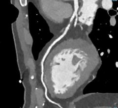 CAD-RADS, coronary CT angiography, CCTA, reporting, SCCT, ACR, NASCI, ACC
