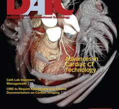 DAIC magazine's may issue includes a comparison chart and article on advances in cardiac CT
