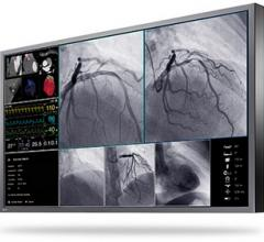 Eizo Presents New Large-Format 4K UHD Monitor for Interventional Radiology and Endoscopy