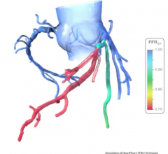 HeartFlow's FFR-CT (FFRct) analysis software can create a virtual FFR to assess coronary artery disease.