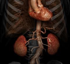 Clinical Trial, Heart valve repair, TAVR