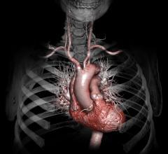 Sudden cardiac arrest, Euro VT/VF meeting, Ventricular Fibrillation, ECG