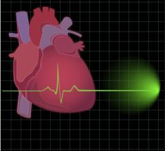 BioControl Medica Clinical Study CardioFit Vagus European Journal of Heart Failu