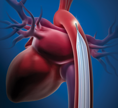 he U.S. Food and Drug Administration (FDA) is evaluating recent reports of Getinge's Maquet/Datascope intra-aortic balloon pump (IABP) devices shutting down while running on battery power.