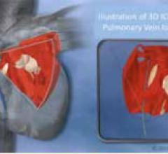 RTI International Live Volumetric Imaging Intracardiac Echo