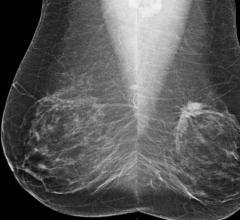 ACC 2016, JACC, mammography, heart disease, screening, study