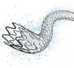 Detroit Medical Center Heart Hospital Uses Michigan's First EluNIR Drug-Eluting Stent