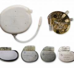 Mexican Doctors Safely Reuse Donated Pacemakers After Sterilization