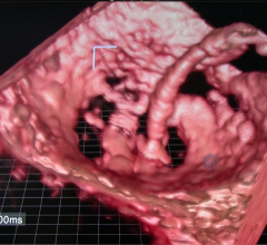 3D TEE, Mitraclip, mitraclip implantation, Echopixel, GE Healthcare, 3D imaging for procedural navigation