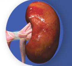 Renal denervation, hypertension, Peregrine System