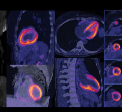 Technology and Radionucleotide Development Will Fuel Mobile Gamma Camera Adoption