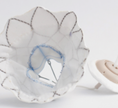 Tendyne Transcatheter Mitral Valve Replacement Device Demonstrates Positive 30-Day Outcomes