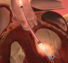 intraaortic balloon pumps, IABP, ventricular assist devices, VAD, cost effective