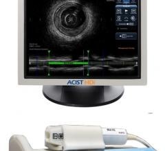 Acist, high-definition intravascular ultrasound system, HD-IVUS
