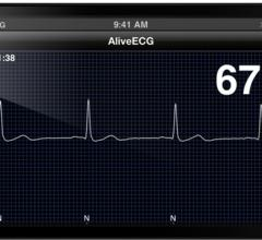 AliveCor Heart Monitor Phone Atrial Fibrillation