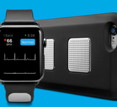 Kardia Band, Alivecor