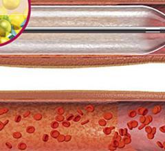 Primus Drug-Eluting Balloon Balloon Catheters Peripheral Artery Disease devices