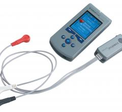 Biomedical Systems TruVue Wireless Ambulatory ECG Monitoring System