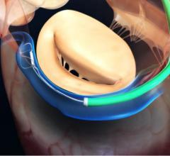 Carillon mitral contour system, cost-effective, optimal medical treatment, OMT, TITAN, functional mitral regurgitation, FMR