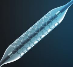 CeloNova Cobra Pzf stent