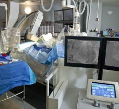 Corindus, Corpath, robotic navigation, Robotic PCI, CorPath GRX