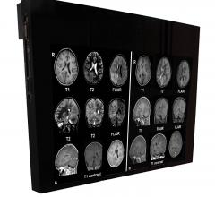 Flat Panel Displays, RSNA 2014, MRI Systems, DBI24-MRSafe