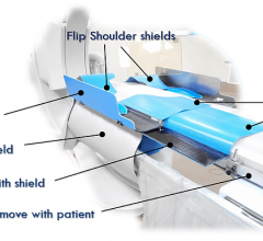 The Egg Medical EggNest cath lab patient table is designed with passive protection designed to drastically reduce scatter radiation exposure for the entire cath lab team without disruption to workflow.