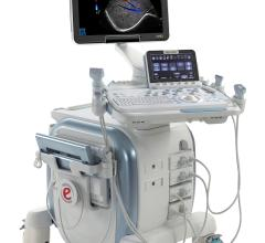 Esaote FDA Clearance for Virtual Navigator Ultrasound Fusion Imaging MyLabTwice
