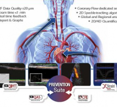 ultrasound systems cardiovascular esaote prevention suite euroecho RF