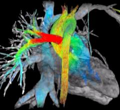 viosworks, cardiac MRI