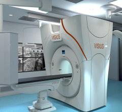 IMRIS siemens CT systems hybrid OR Visius iCT