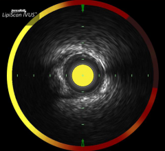 Infraredx, NIRS, IVUS