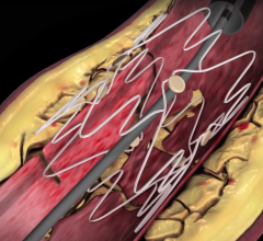 PinnacleHealth Cardiovascular Institute, TOBA II study, first patient, Tack Endovascular System, PAD