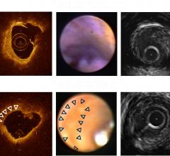 Pie Medical Imaging, CAAS IntraVascular 2.0, OCT, IVUS, NIRS-IVUS