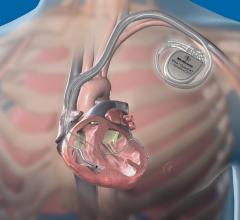 heart failure, asynchrony, PITA, Johns Hopkins, pacemaker