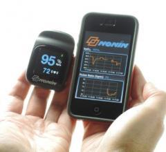 Nonin Medical, NoninConnect Model 3230, Bluetooth Smart, wireless finger pulse oximeter, iOS-compatible, Apple