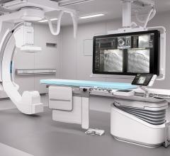 Philips, cardiology solutions, ACC.17, Azurion angiography system, iFR outcomes results, IntelliSpace Cardiovascular