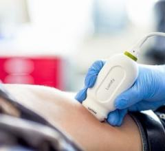 Philips, Lumify smart-device ultrasound, S4-1 cardiac transducer, RSNA 2016
