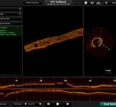 OCT st. jude imaging systems cath lab advanced visualization ilumiens