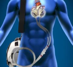 SynCardia Total Artificial Heart, TAH-t, documentary, Retro Reports, The New York Times