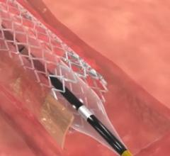 Stentys, commercialization, BTK stent, below-the-knee arteries